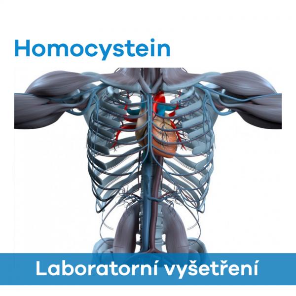 EUC Laboratoře - Homocystein